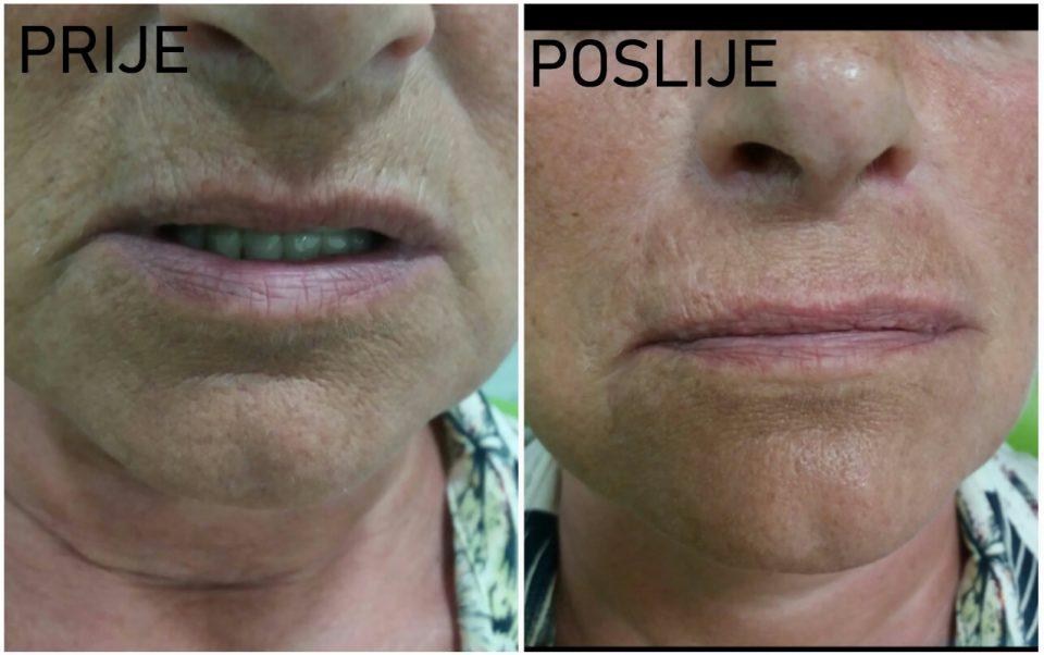 Denta Lux: Tretmani biorevitalizacije